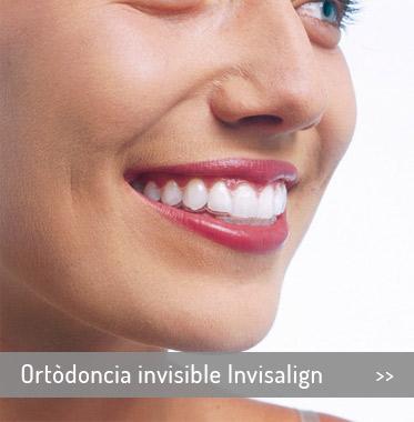 inici-ortodoncia-invisible-invisalign