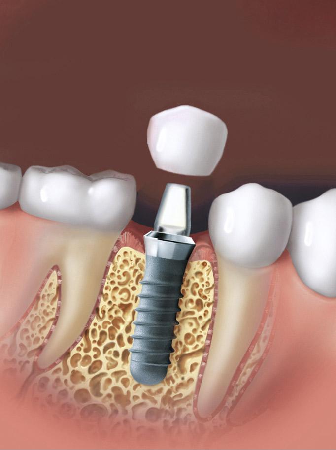 Dents en un dia