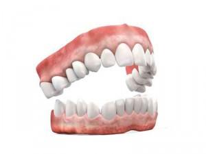 Protesi-dental-completa