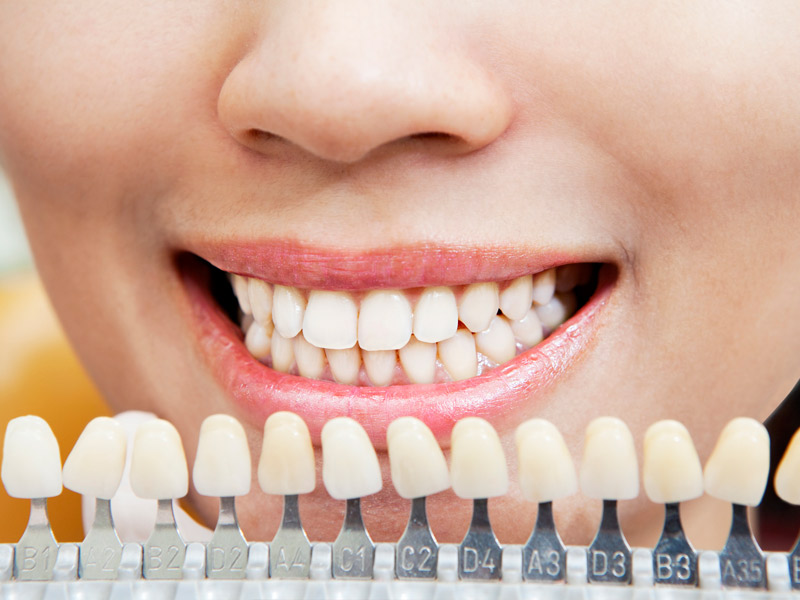 Protesi dental fixa