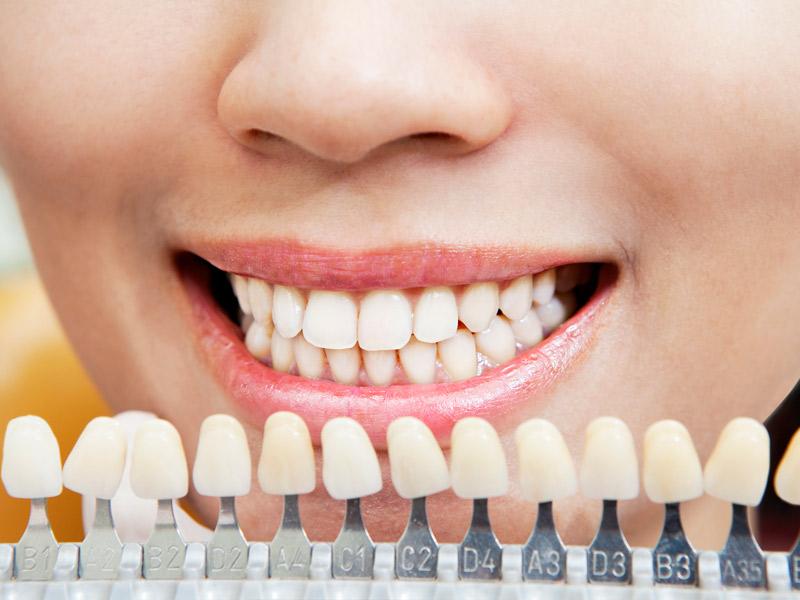 Protesi dental fixa