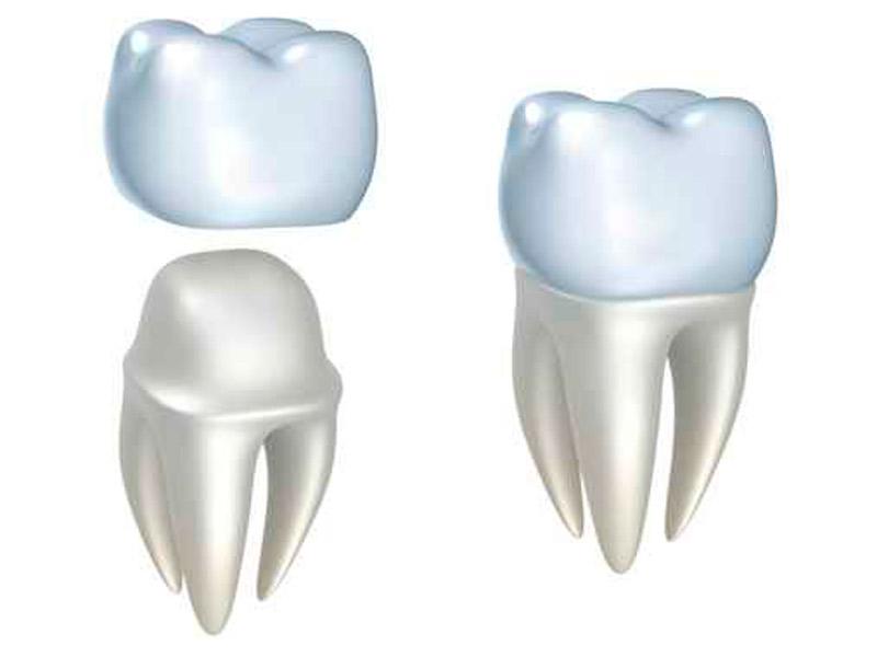 Protesis dental fixa corona