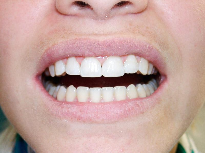 Abans i després de reconstrucció dental estètica
