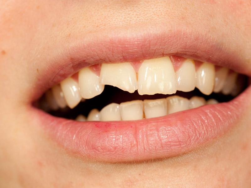 Reconstruccions dentals estètiques