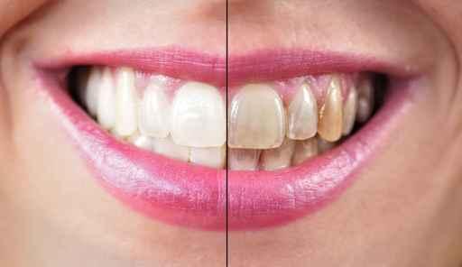Abans i després blanqueig dental