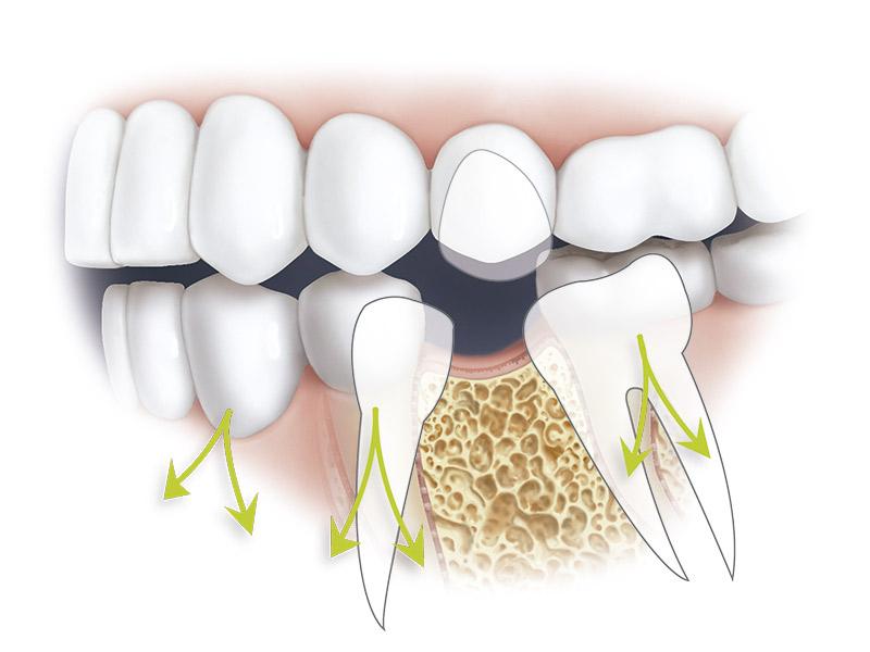 Pèrdua d'una dent