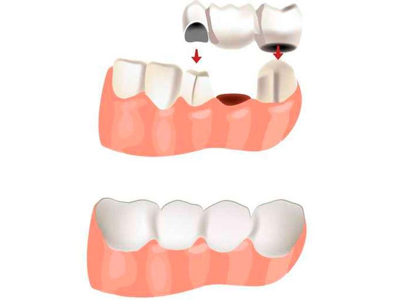 protesi dental fixa puente